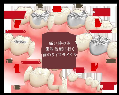 歯を失う原因